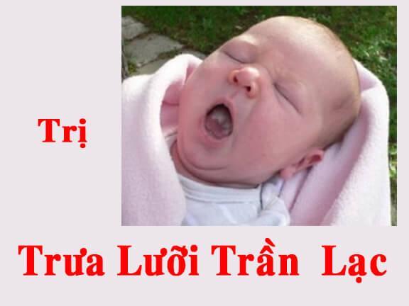 Trị trưa lưỡi ở trẻ, khi trẻ bú sẽ dư thừa sữa trong miệng lâu sẽ tại thành trưa, và cũng do bệnh lý